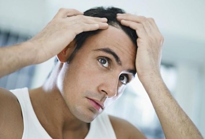 Haarausfall erfolgreich vorbeugen