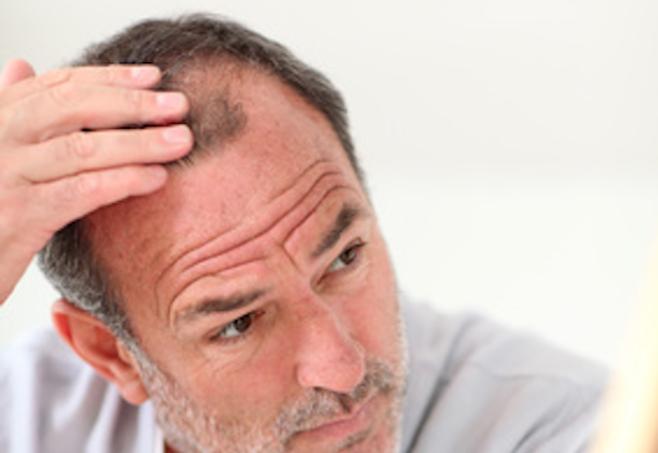 Erblich bedingtern Haarausfall stoppen